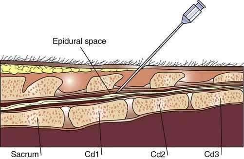 بیحسی اپیدورال در ناحیه دم گاو